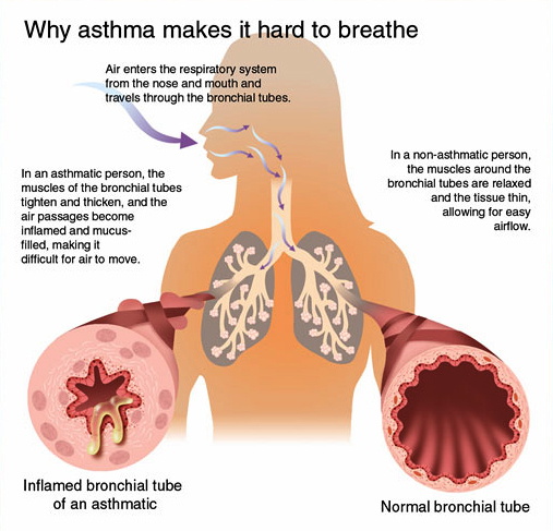 Homeopathic doctors for treatment of asthma. What is asthma? Homeopathic remedies