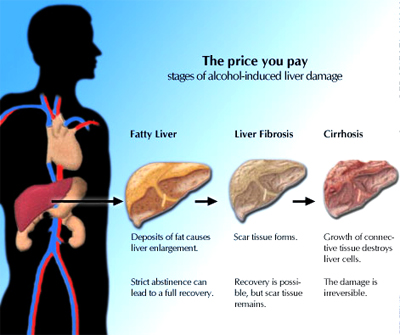 Homeopathic doctors for fatty liver disorder. What is a fatty liver disorder. Homeopathy remedies with cure for fatty liver disorder without side effects.