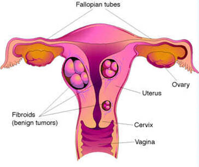 Homeopathic doctors for treatment of fibroids or myomas or uterus. What is a fibroid or myoma. Homeopathy remedies with cure for fibroid or myoma without surgery.