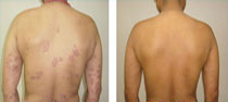psoriasis best homeopathic doctor before and after homeopathic treatment